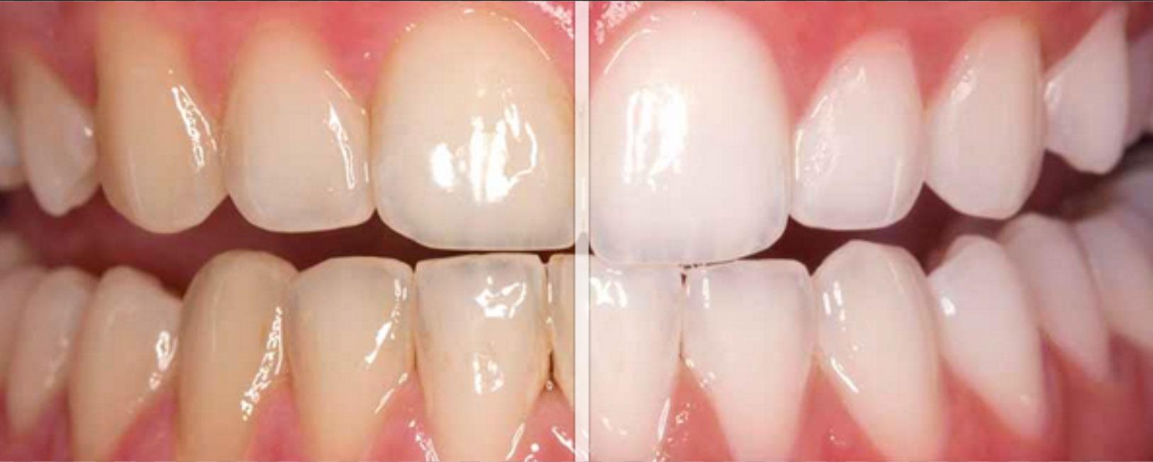 sbiancamenti dentali