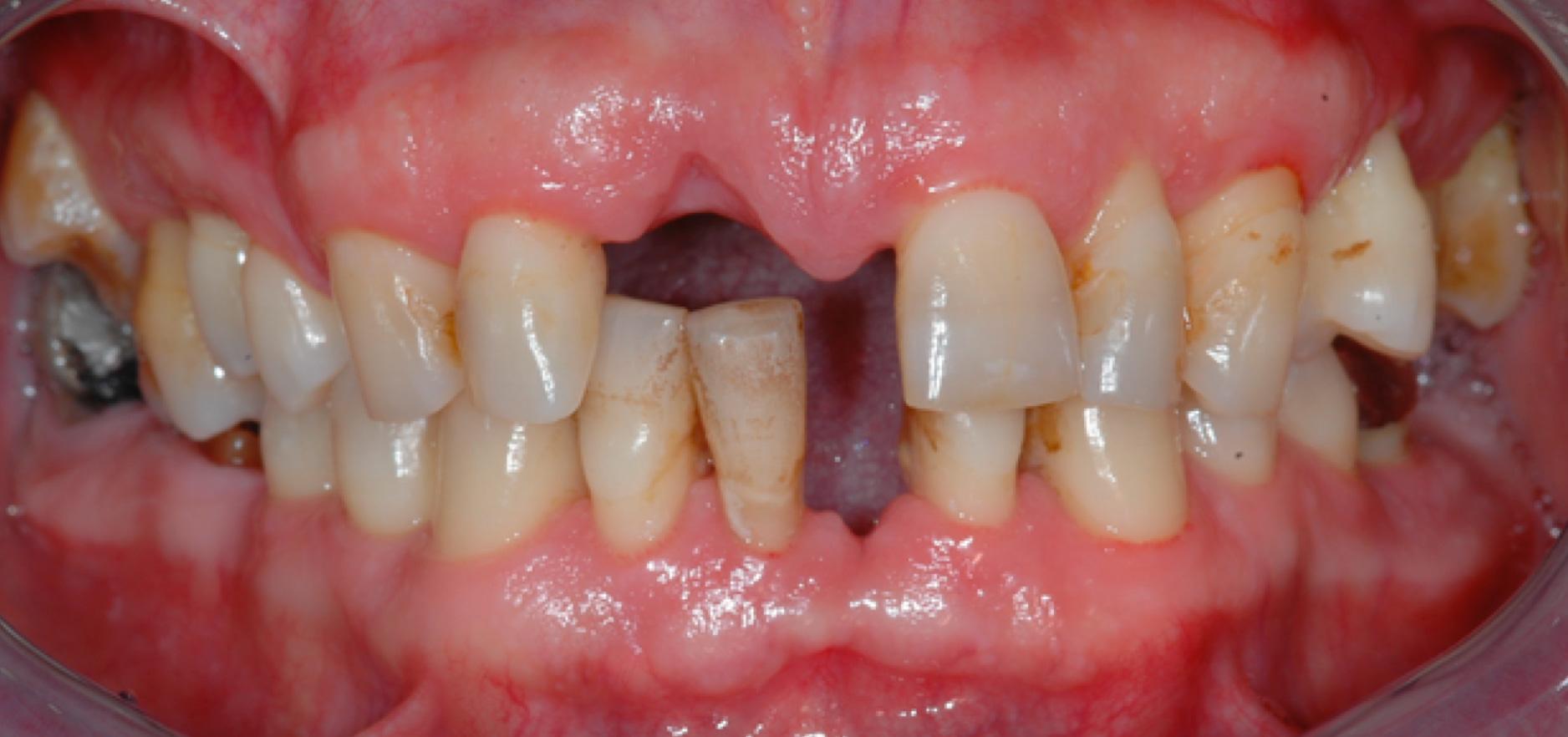 denti cariati
