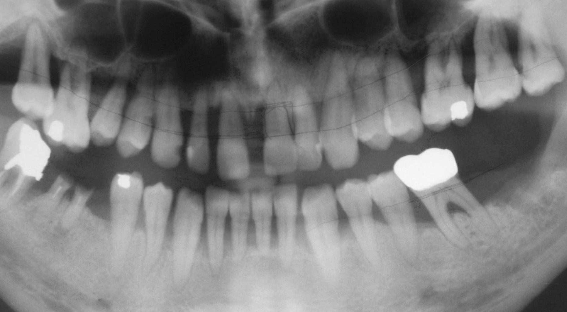 radiografia 4