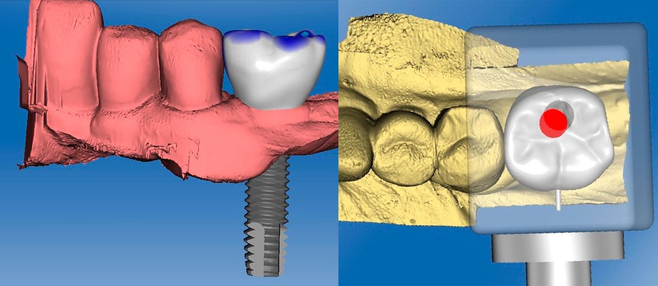 molare lab