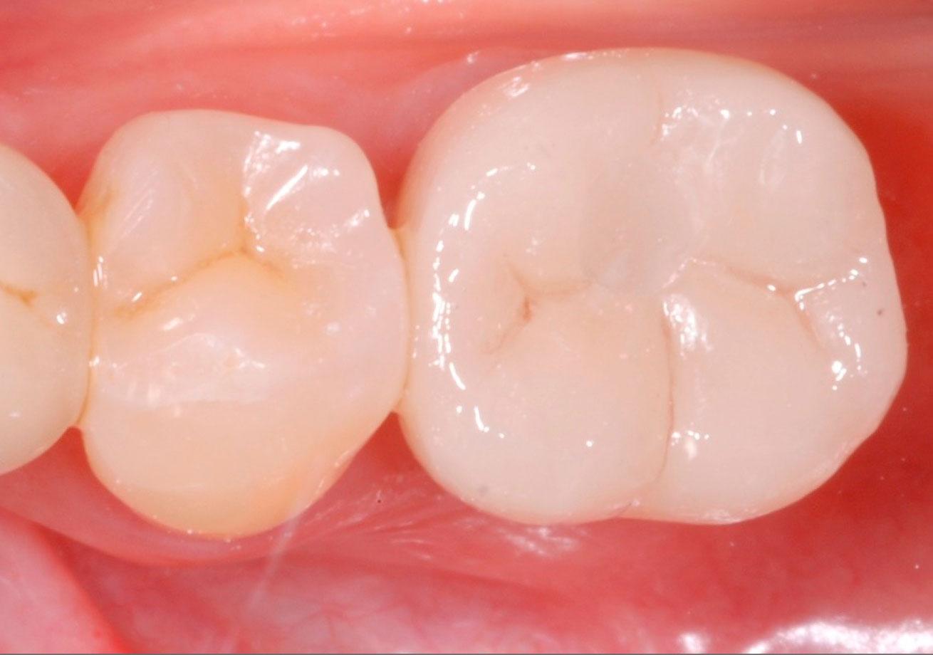 molare finito