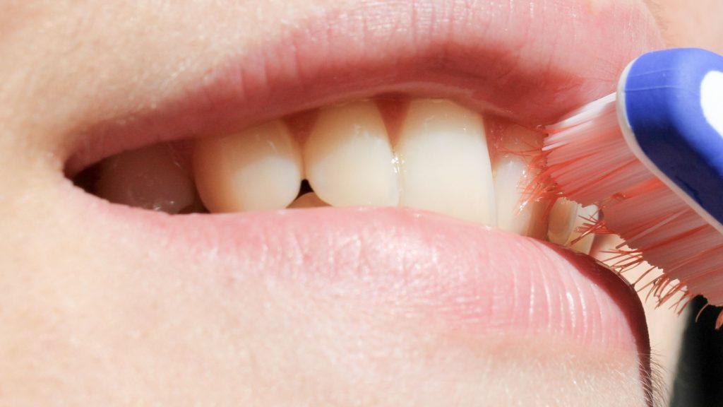 igiene orale danneggiamento